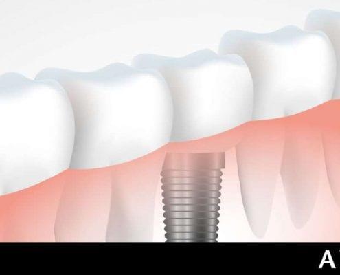 solcuiones en implantes dentales