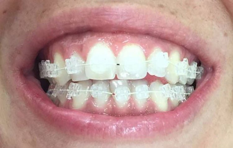 Brackets zafiro Clinica Dental Aviño