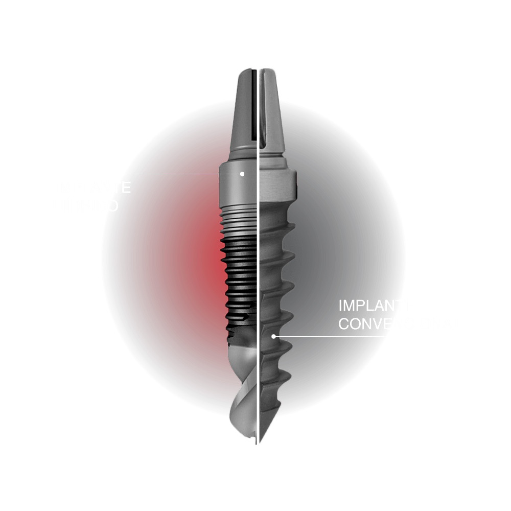 implante híbrido