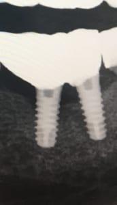 Tratamiento Regeneración de huesto dental