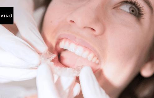 ortodoncia invisible Invisaling