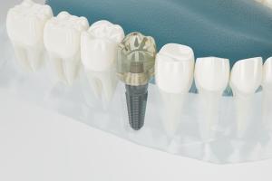 Imagen de un implante dental tras perimplantitis