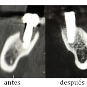Antes y después de la regeneración del hueso dental