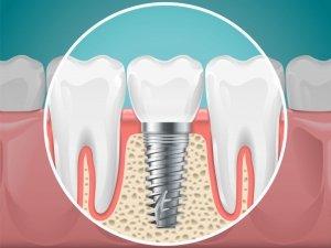 Especialista en Implantes Dentales | Clínica Aviñó