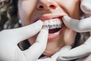 Mujer con ortodoncia invisible en el dentista