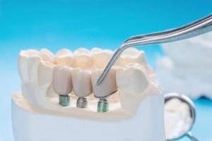 Simulación de cómos e coloca un implante x-guide en la boca del paciente, en este caso una maqueta de la boca