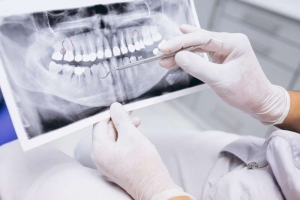 Radiografía hecha en dentista de familia