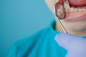 Niño acude a Clínica dental Valencia por caries