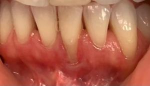 Sonrisa antes de la cirugía de encías en la clínica de estética dental Aviñó