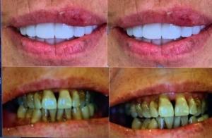 Sonrisa antes y después de blanqueamiento dental