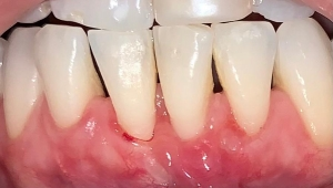 Sonrisa después de la cirugía de encías en la clínica de estética dental Aviñó