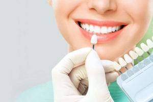 Mujer sonriendo después de pasar por la clínica de estética dental en Valencia